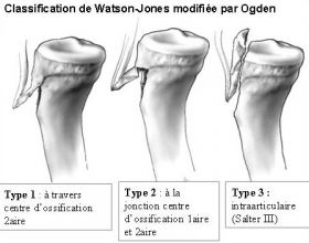 Classification de Watson-Jones modifiée par Ogden